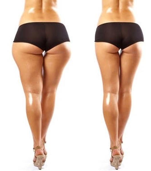 убрать жир с ног выше колена